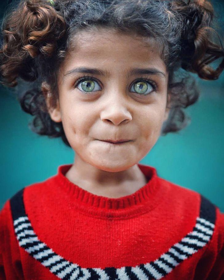 20張讓你「彷彿看見了宇宙」小孩眼睛 琥珀色瞳孔比寶石更美!